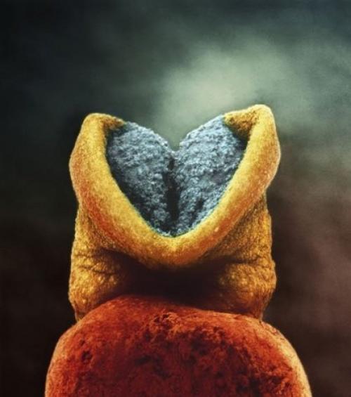Развитие эмбриона. Серым цветом выделен будущий головной мозг.