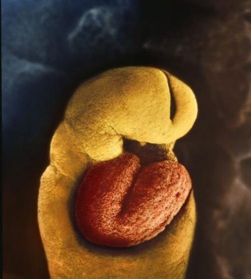 24 дня. Скелета у месячного зародыша еще нет, есть только сердце, и оно начинает пульсировать на 18-й день.