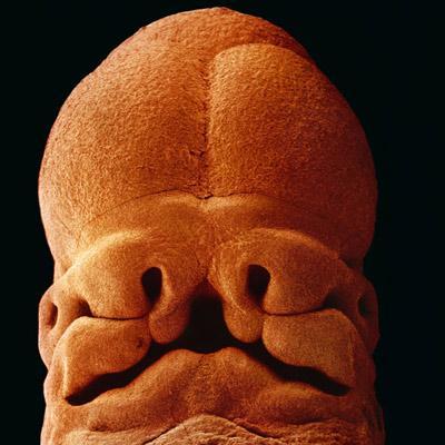 Пятинедельный эмбрион, длина 9 мм, уже угадывается лицо с отверстиями для рта, ноздрей и глаз.